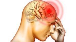 Cause di mal di testa e nausea