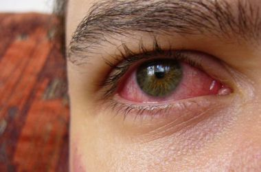 Arrossamento degli occhi